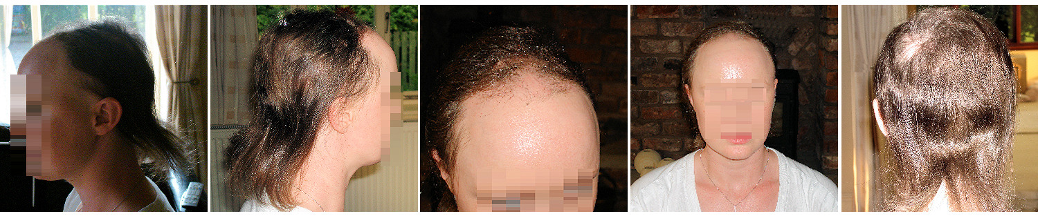 thinning hair replacement